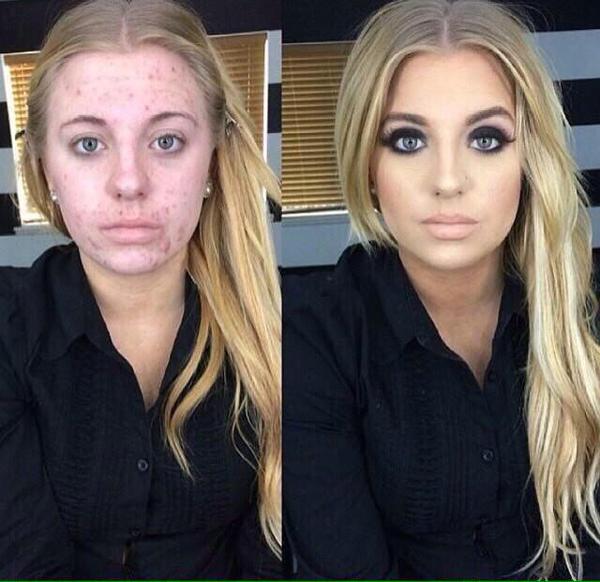 ¿Cómo disimular tu acné con maquillaje?