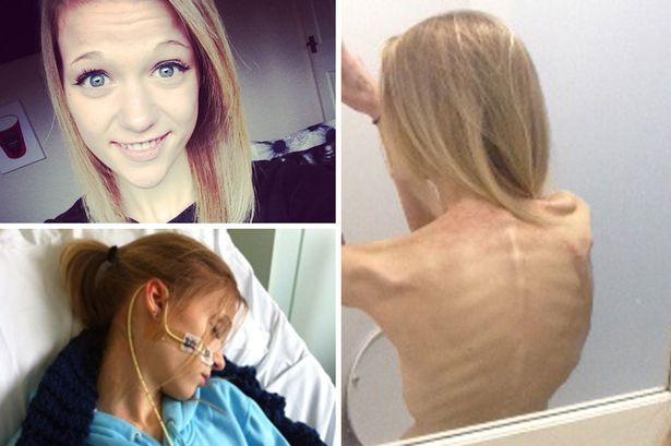 La historia de India Edmons, una adolescente que luchó contra la anorexia