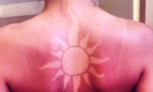 'Sunburnart', el peligroso arte de quemarse que está de moda
