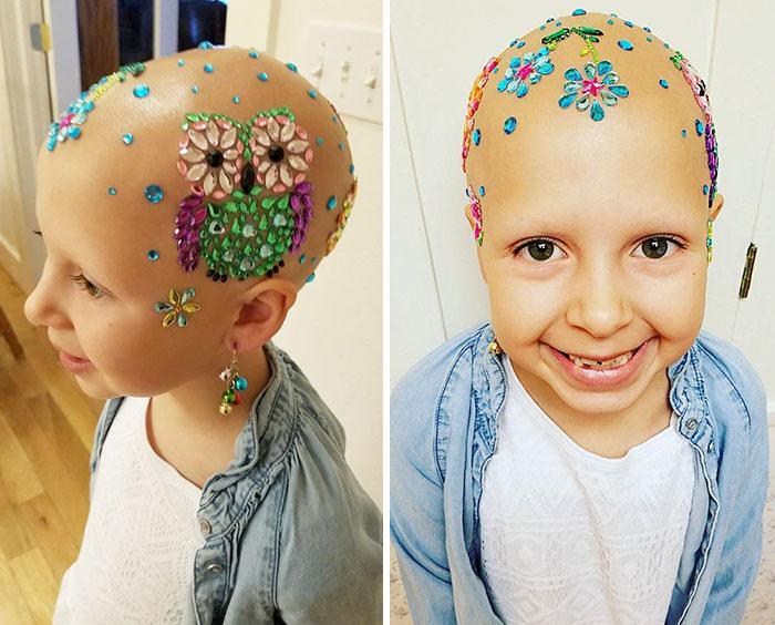 """Esta niña sin pelo encontró la mejor forma de hacerse un """"peinado loco"""""""
